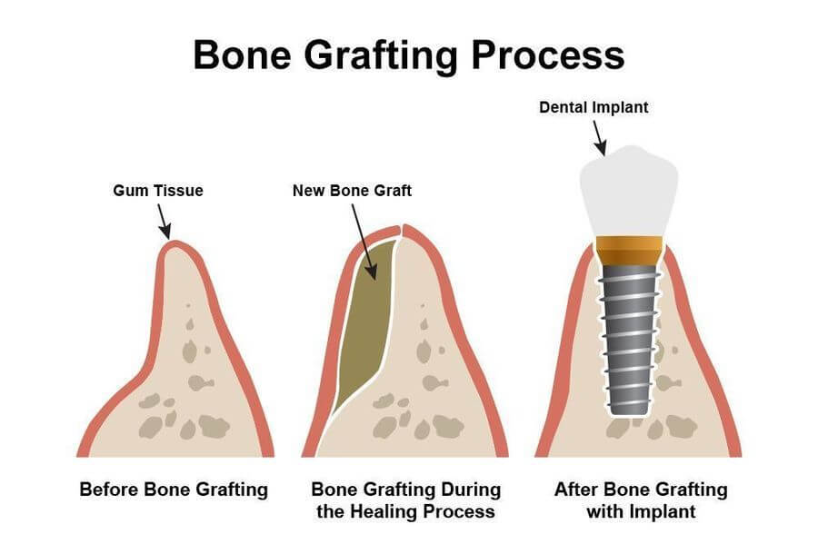 BONE GRAFTS WITH A-PRF OR CGF