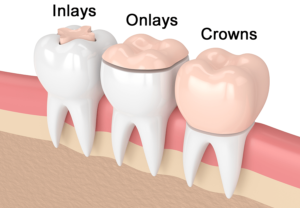 Dental Inlays Onlays