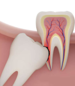Wisdom Teeth Removal or Extraction